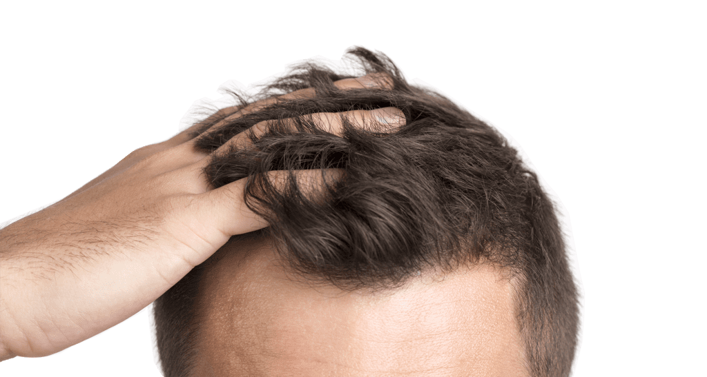 dlaczego-wart0-zrobić-przeszczep-włosów