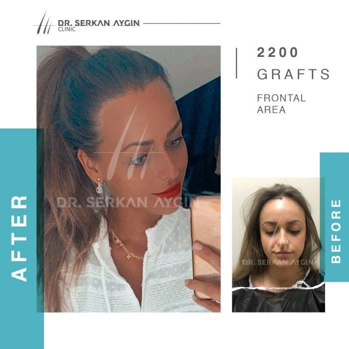 17-BA_1 - efekt przeszczep włosów Turcja