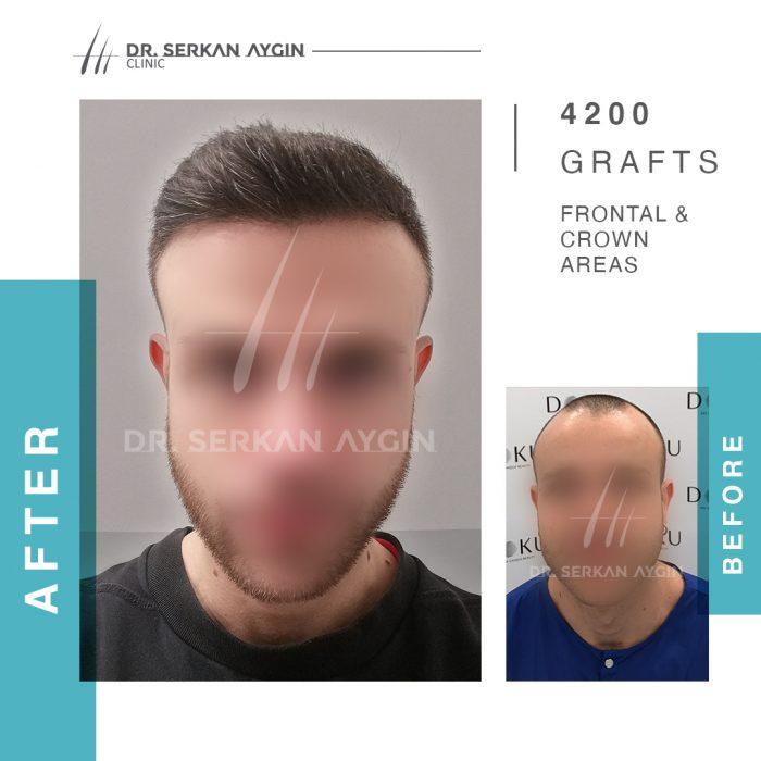 przeszczep-włosów-w-turcji