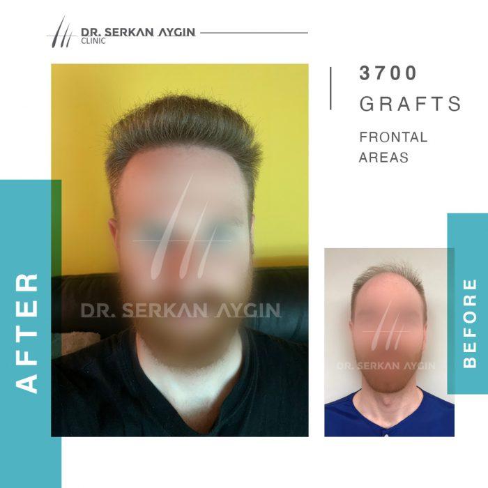 Stefano Bedin - efekt przeszczep włosów Turcja